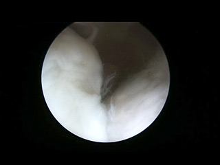 Elbow Arthroscopic Surgery 1